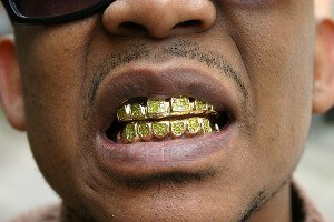 famous rapper emcee wearing fronts