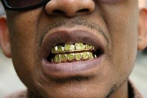 famous rapper emcee wearing fronts