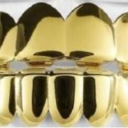 Premium Gold Grillz - 8 tooth